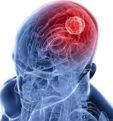 Чем опасен клещевой энцефалит для человека: симптомы и лечение